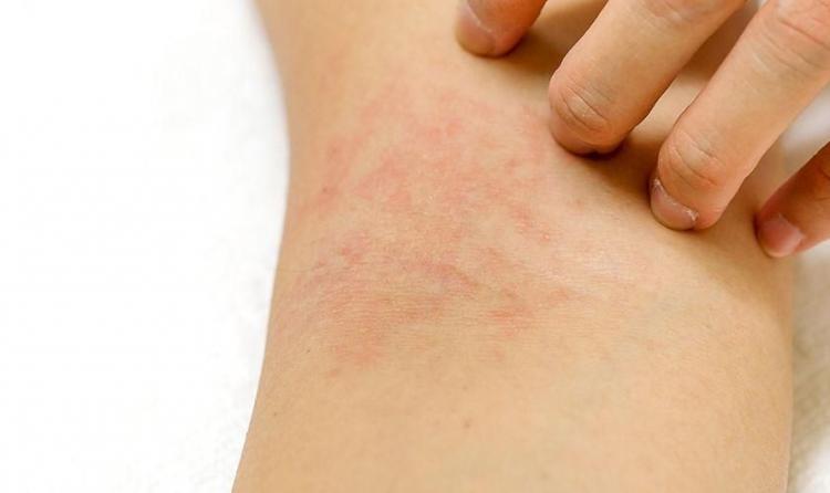 11. Mengatasi Terjadi Alergi